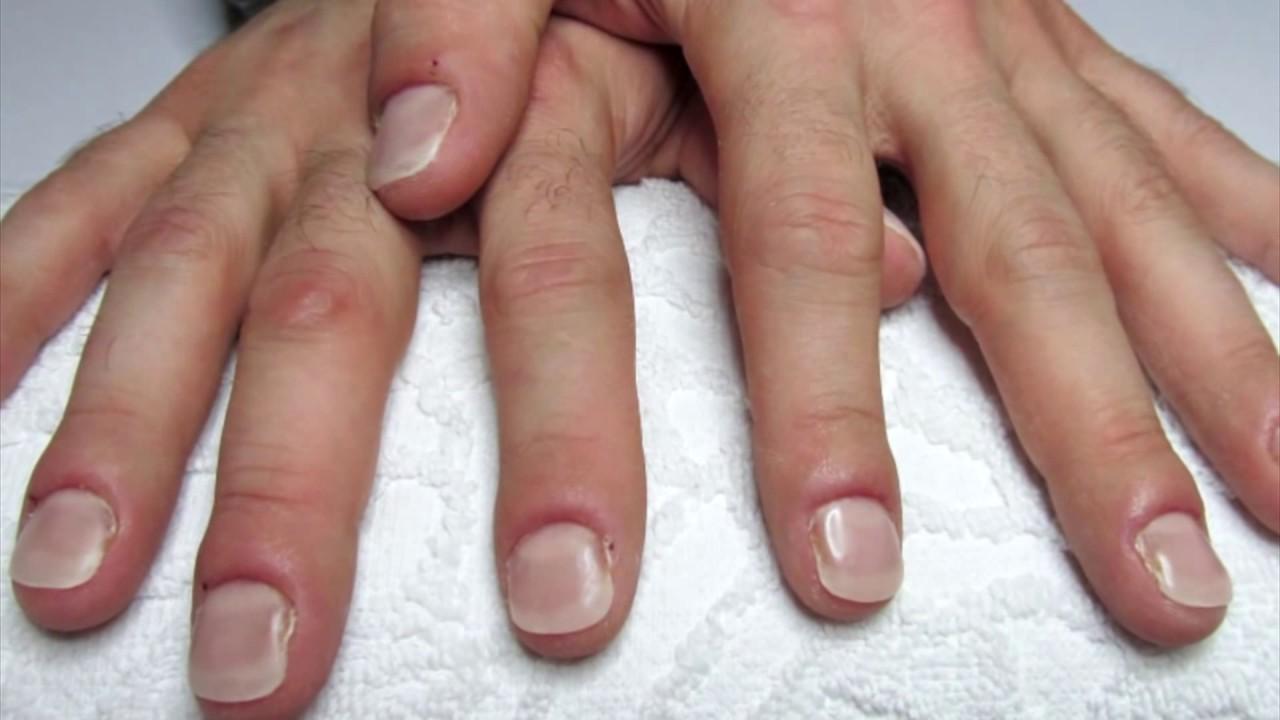 ricostruzione unghie onicofagiche uomo , Master Gabriela Damian