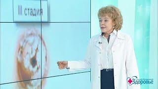 видео Причины возникновения и лечение гиперплазии эндометрия матки