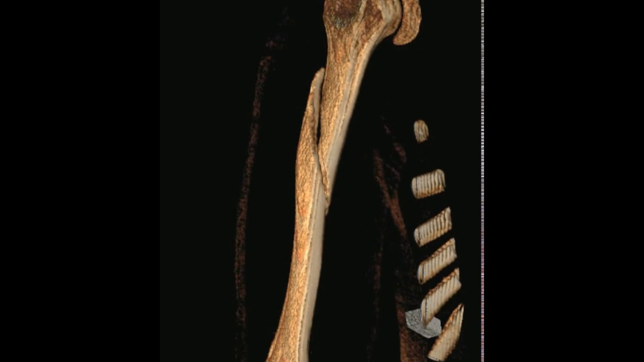 Spiral Fracture Of Humerus Youtube