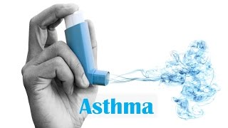 Asthma: Causes and Solutions