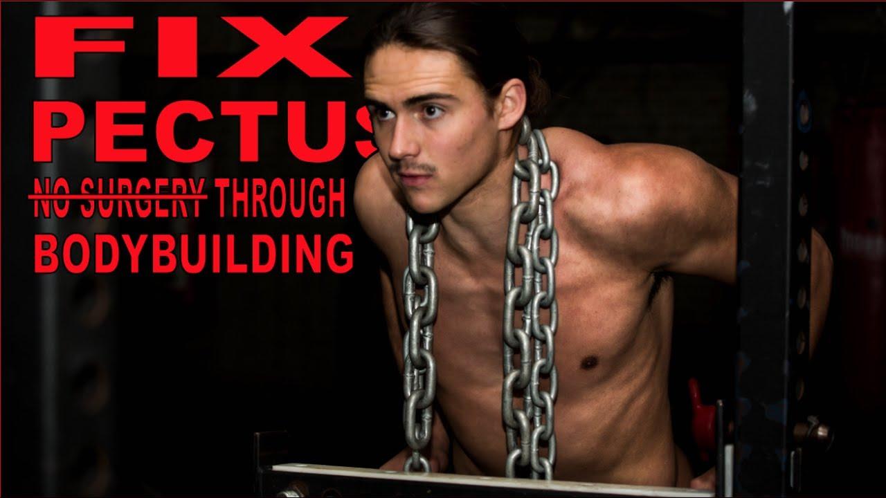 Pectus Excavatum Bodybuilding Transformation FIX PECTUS EXCAVATUM T...