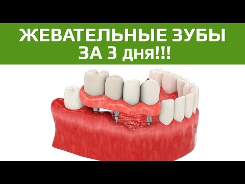 вживление импланта зуба