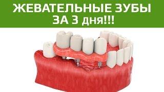 Имплантация зубов с немедленной нагрузкой. Восстановление жевательных зубов.(Имплантация с немедленной нагрузкой - один из методов имплантации, который набирает популярности в нашей..., 2015-06-22T12:36:03.000Z)