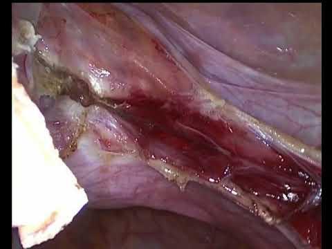 Лапароскопическая супрацервикальная гистерэктомия без придатков – без монтажа