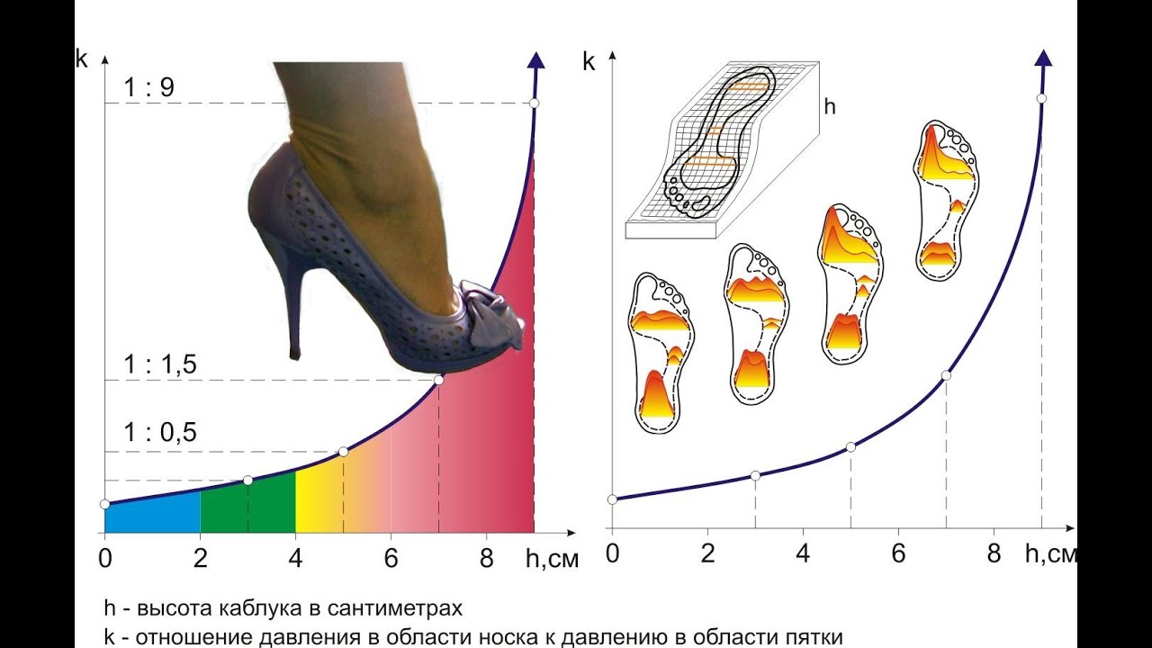 Косточка на ноге причины образования симптомы и лечение