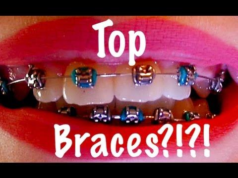 Braces & Headgear update 4! Top Braces?!?!