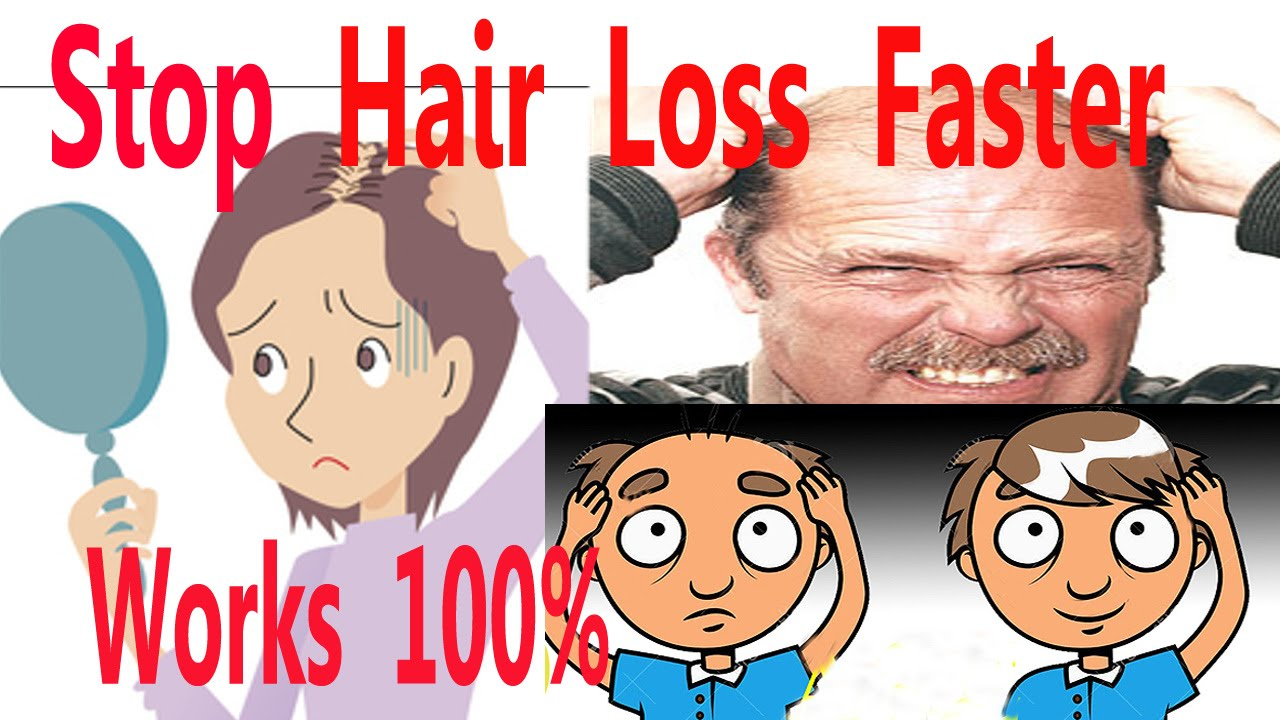 hair loss treatment Baton Rouge