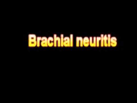 What Is The Definition Of Xerophthalmia from YouTube · Duration:  1 minutes 20 seconds
