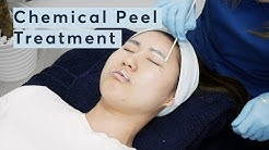 hqdefault - Face Peel For Acne