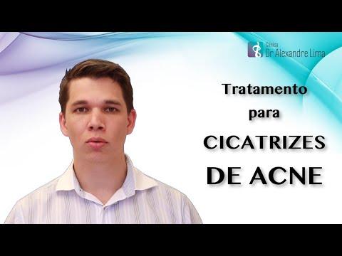 Cicatrizes de Acne - Tratamento com Laser de CO2 Fracionado
