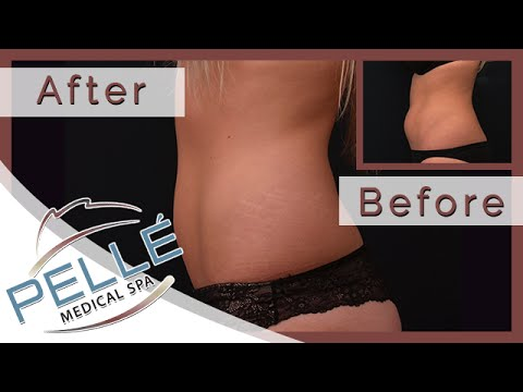 Laser Liposuction in Manchester NH - Special Offer - Pelle Medical Spa