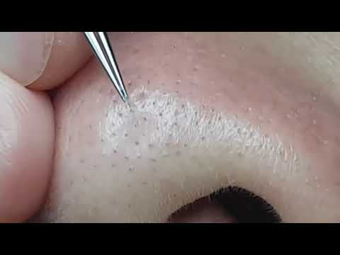расширенные поры на носу