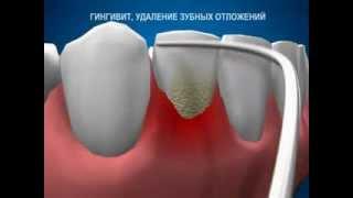 Лечение гингивита(, 2013-09-30T19:42:21.000Z)