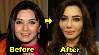 Top 9 TV Actress Plastic Surgery GONE WRONG 2018 | Shocking