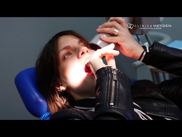 Clínica Meyden -  Revisión y diagnóstico dental por la Dra  Sara Risoto