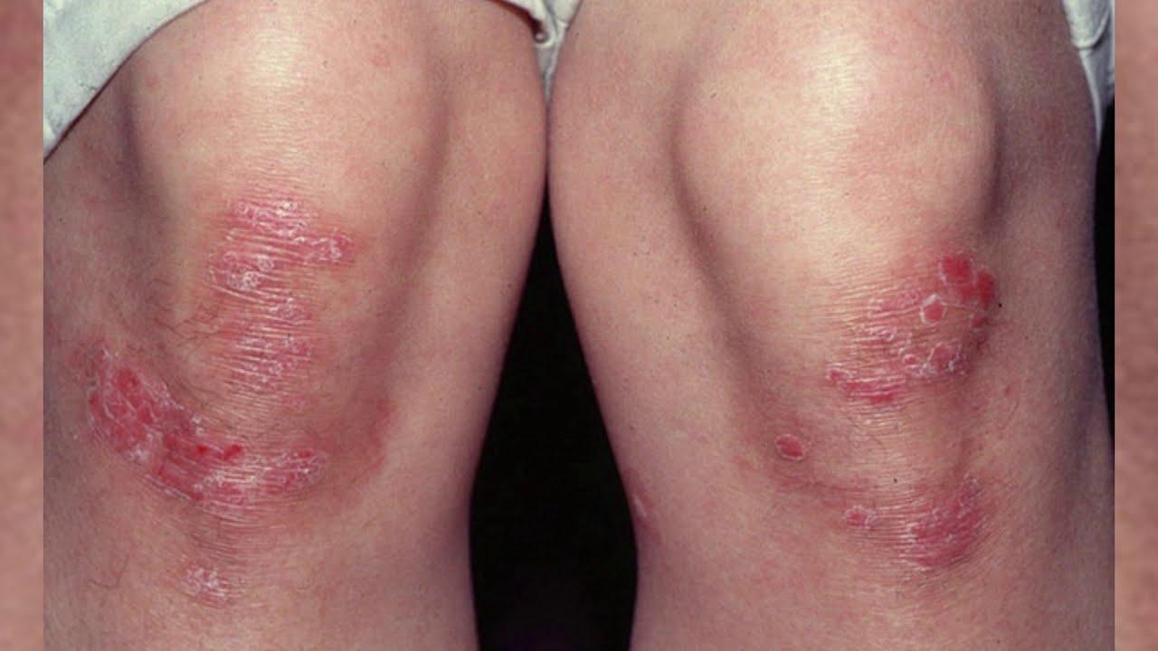 Псориаз: фото начальной стадии на руках, ногах, теле и ...