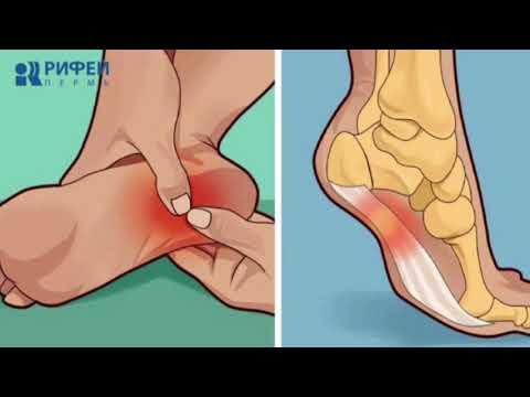 На ногах подошва болит