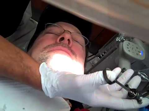 dental injections anesthesia - YouTube