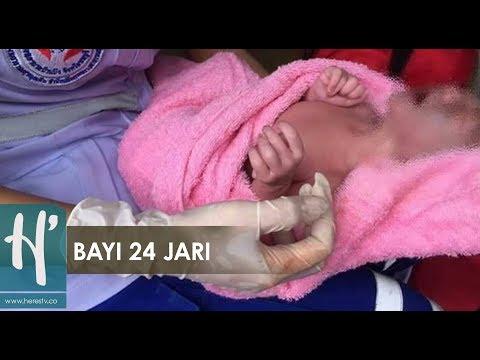 Bayi Lahir dengan 12 Jari Tangan, 12 Jari Kaki