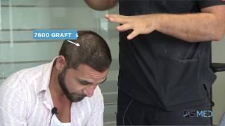 7600 Grafts Manual FUE пересадка волосся результат