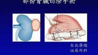 局限型腎細胞癌的腹腔鏡手術02.wmv thumbnail