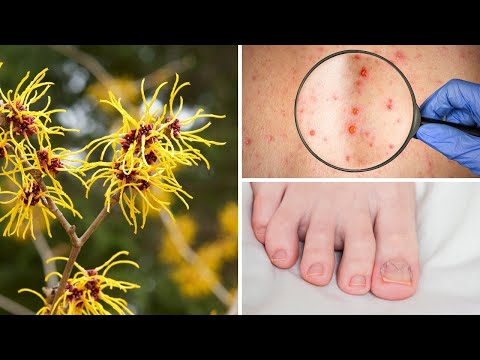 Health Benefits of Witch Hazel | Healthy Living Tips