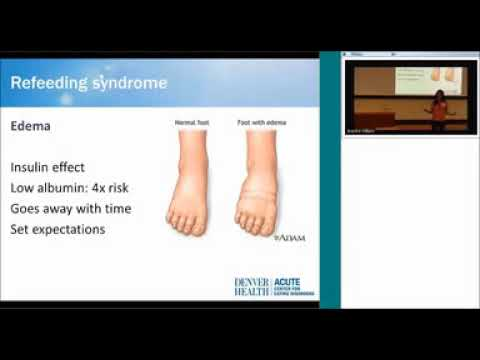 Medical Complications Of Eating Disorders  Silber Lecture Gaudiani 4 27 16 1