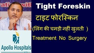 Phimosis Paraphimosis Tight Foreskin Opening Difficulty in pulling Skin Back over Penis 9899180390