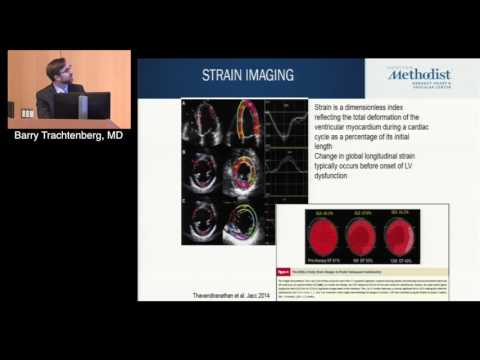 State-of-the-Art Cardio-Oncology Review (Barry Trachtenberg, MD)