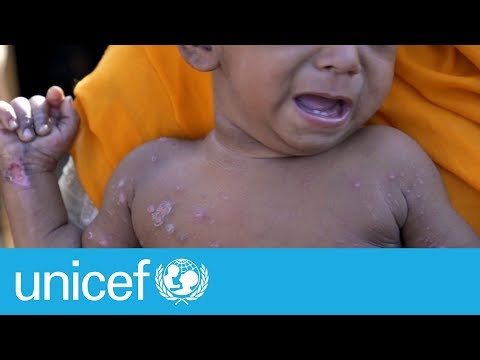 Rohingya refugees face diphtheria outbreak | UNICEF