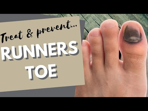 Runners Toe: How to prevent and treat black toenails