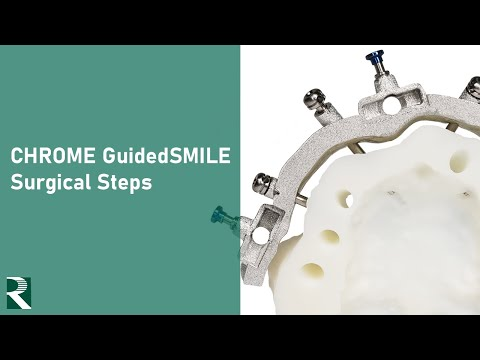 GuidedSMILE Surgical Steps Video