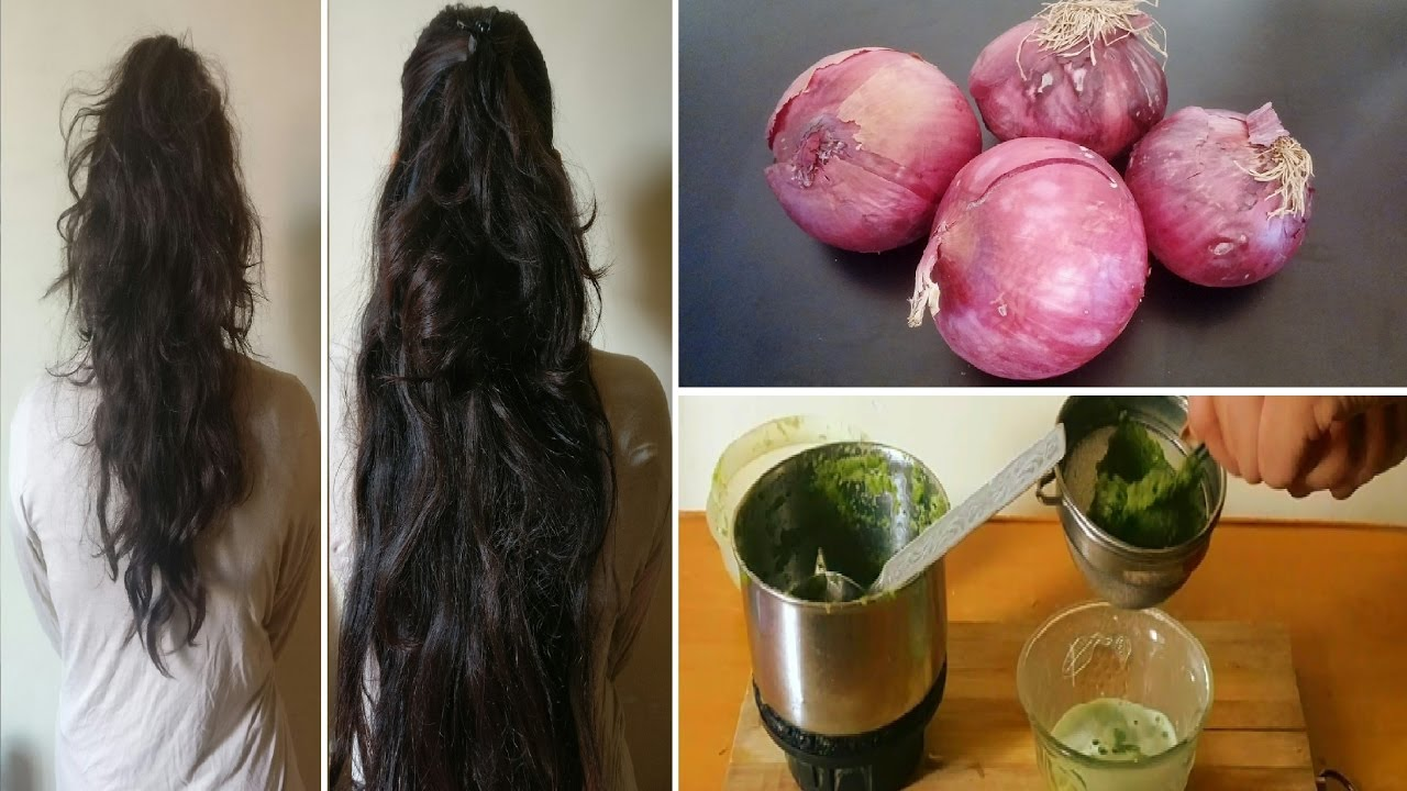 Onion Juice Curry Leaves To Regrow Hair From Roots Get