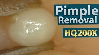 Repeat youtube video Pimple(acne) Removal Close up 200X - Blackheads Removal | 200倍でニキビを潰す(芯を除去)