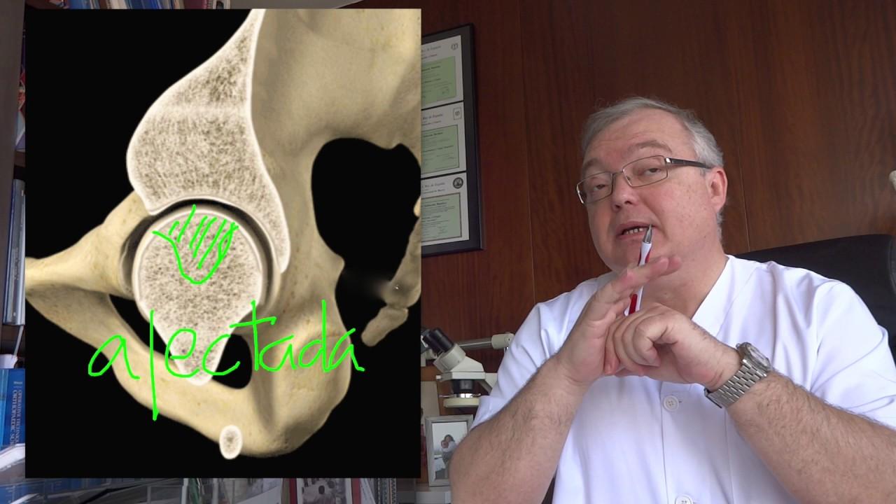 que es un edema oseo en la cadera