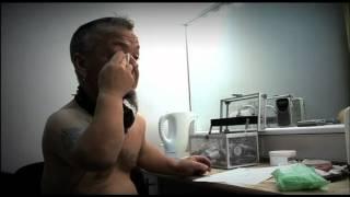Repeat youtube video Penile Problem (Part 1) - Bizarre ER