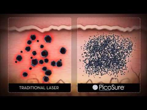 PicoSure Laser Tattoo Removal For Dallas and Plano