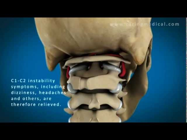 Cervical Vertigo | Dizziness – Caring Medical