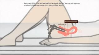 Repeat youtube video Uitstrijkje - Hoe wordt een uitstrijkje gemaakt?