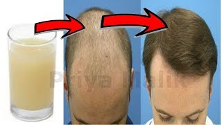 Medically Proven Miracle Formula - In 7 Weeks Change Baldness to Hairy Scalp  - Stop Hair Fall