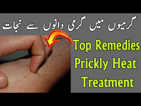 Prickly Heat Problem Solution - Garmi Dano Ka Ilaj - Самые