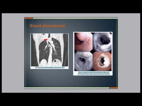 Chest-and-Lung related issues in palliative care by  Dr. Sawang Saenghiranwattanal