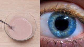 ఇది వాడిన 24 గంటల్లో లోపు మీ కంటి చూపు అమాంతం పెరుగుతుంది    Improve Your Eye Sight Very Fast