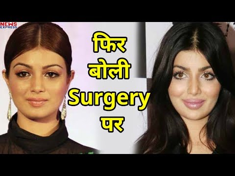 आखिरकार अपनी Lip Surgery पर खुलकर बोली Ayesha Takia