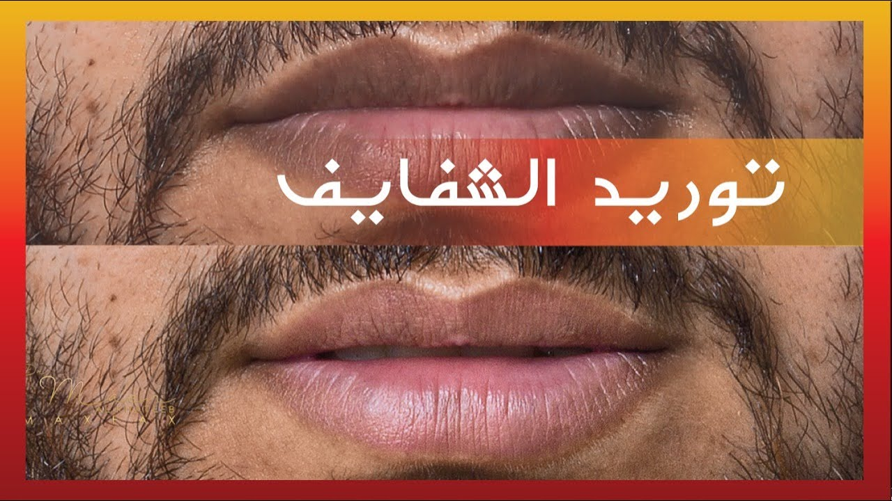 Removal Of Lip Pigmentation With Waterlase By Dr Maen توريد الشفاه بالليزر Youtube