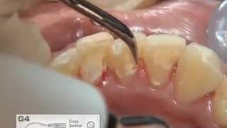 видео чистка зубов у стоматолога