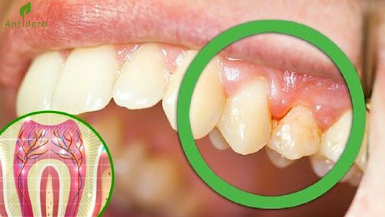 6 causas comunes del dolor en los dientes youtube. Black Bedroom Furniture Sets. Home Design Ideas