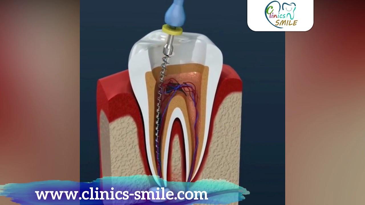 شرح كيف يتم سحب عصب الأسنان عيادات سمايل Youtube