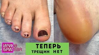 ЧУДО КРЕМ для ног Правильный уход за ногами Педикюр Ирина Брилёва