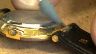 Example of use of Rubber Polishing Points
